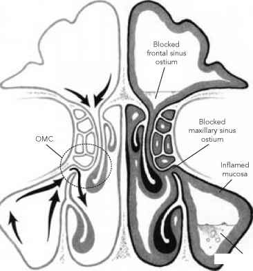 When Healthy Sinuses Become Blocked - Chronic Sinusitis