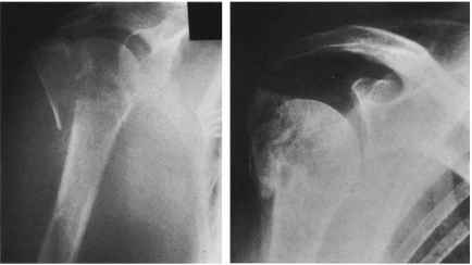 Greater Tuberosity Fractures