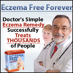 Eczema Free Forever Manual