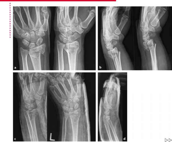 Radial Styloid Fracture Splint