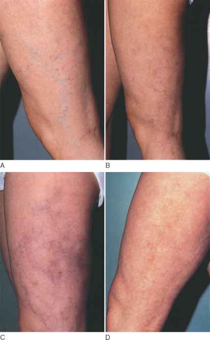 Matting From Sclerotherapy