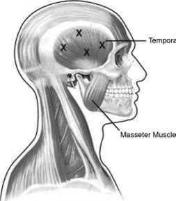 Masseter Muscle Injection