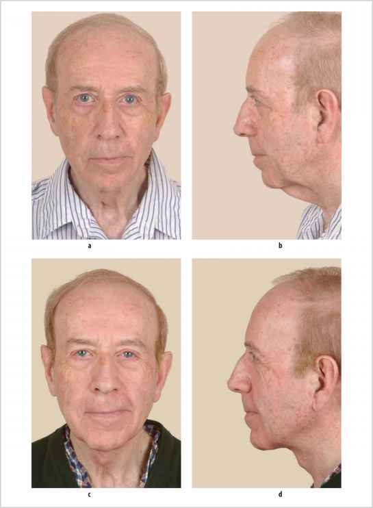 Direct Excision Nasolabial Folds