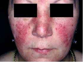 Papules And Pustules Rosacea