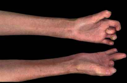 Joint Contractures And Scleroderma