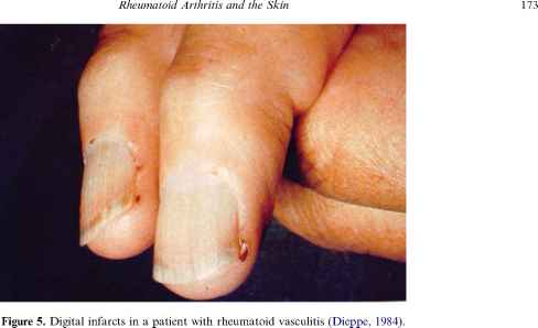 Images Vasculitis The Bowels