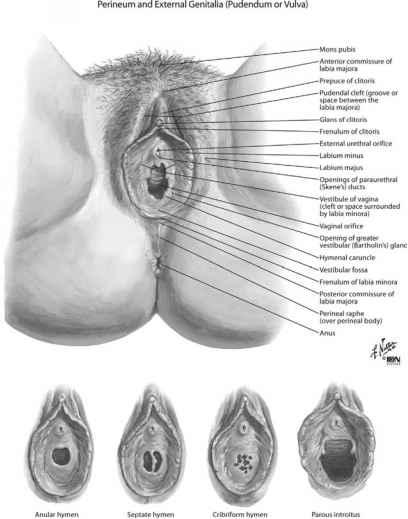 Vulva anatomic variations, multiple sclerosis sucks