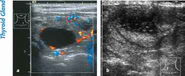 Sonographic Findings Fatty Liver
