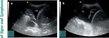 Ultrasound Pleural Effusion Strands